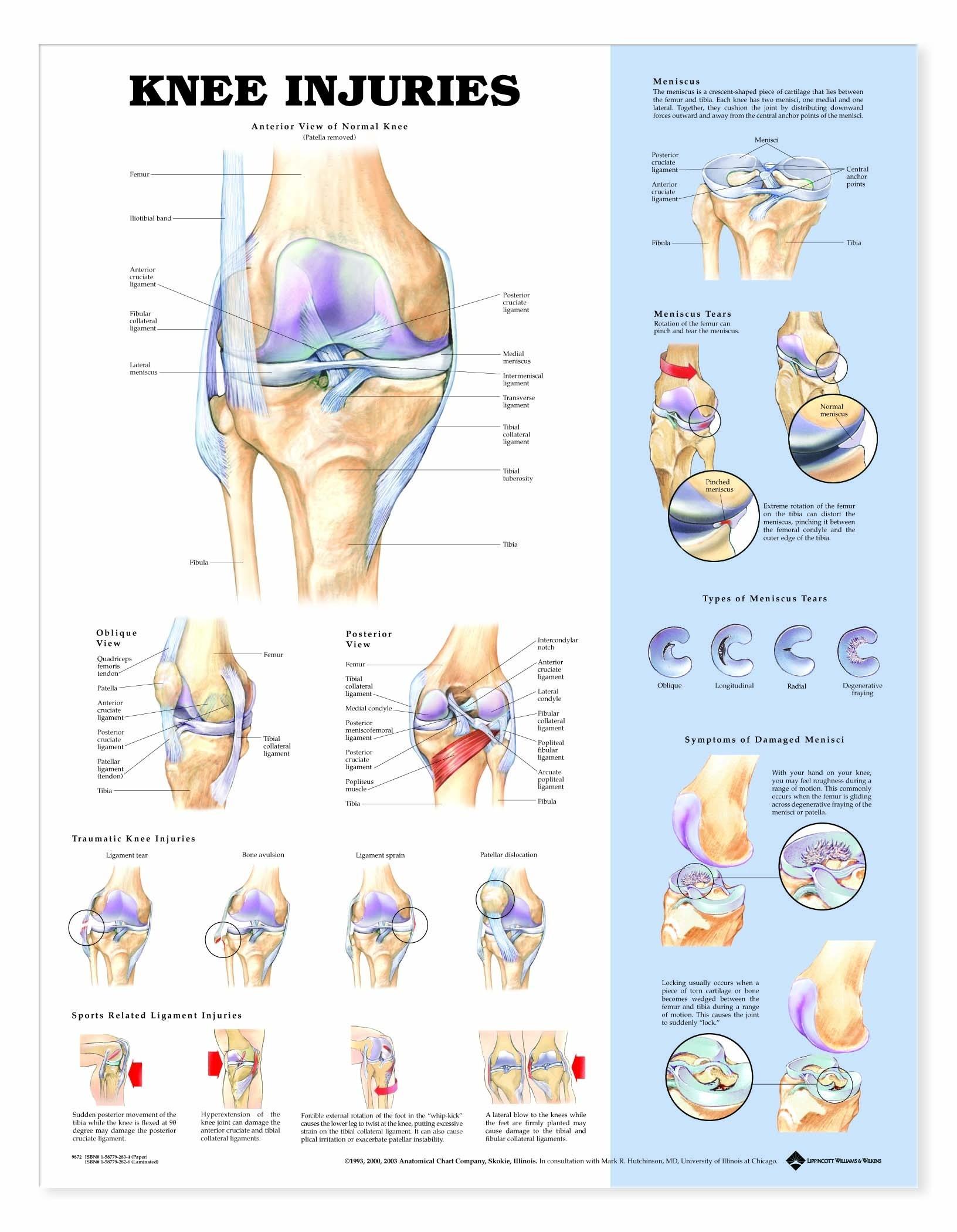 Poster Knee Injuries - zwaar papier