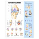 Poster Knee Injuries - dun gelamineerd